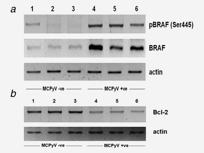 Lasithiotaki et al. 609 Figure 2. Western blot analysis of phospho-braf (Ser445), BRAF and Bcl-2 in MCPyV-infected and noninfected NSCLC specimens.