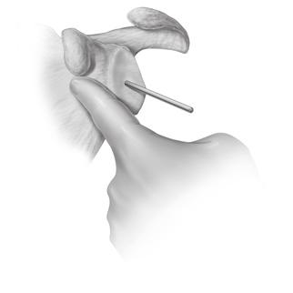 Sequentially ream the glenoid to the appropriate size (Figure 14).