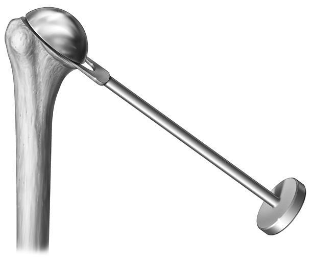 Varying the thickness of the modular Humeral Head provides the ability to optimize stability and range of motion (Table 4). If soft-tissue laxity is excessive, a taller Humeral Head may be necessary.