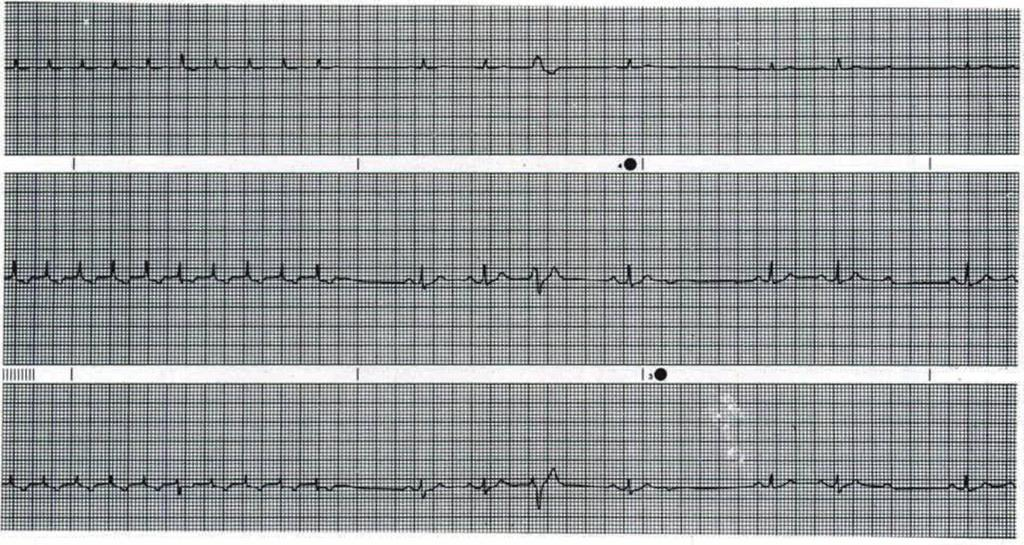 the patient's A\' nodal reentrant drt uit is hroken and normal sinus rhythm is restored.