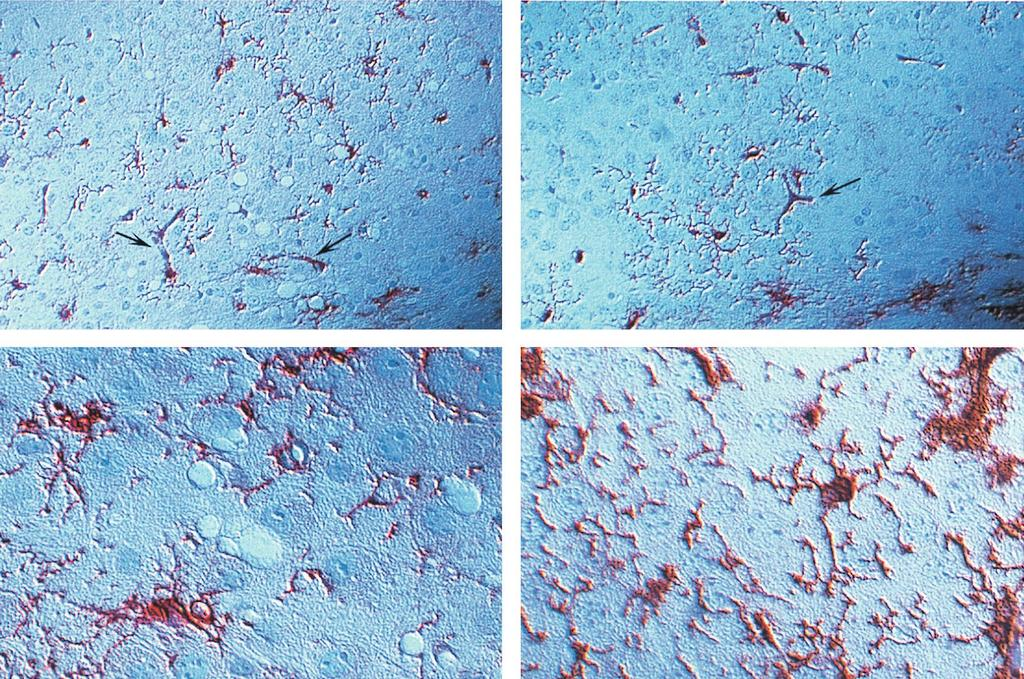 VOL. 74, 2000 NEUROINVASIVE BUT AVIRULENT RETROVIRUSES 469 FIG. 5. Immunohistochemcial staining of infected cells in the brains of FrCas E - and F43-infected mice 16 days p.i. Sections of paraffin-embedded tissue were subjected to heat-induced antigen retrieval and stained with goat anti-gp70.