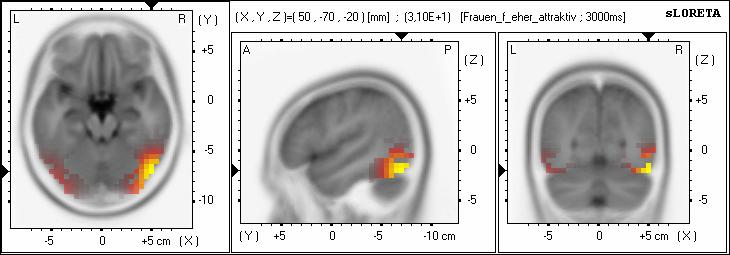 To examine where the centre of activation for the N170 is located, a sloreta analysis was performed. sloreta localisations show the centre of activation in the right hemisphere in Brodmann area 19.