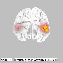 Figure 24. Localisation of N170 in women (on the left) and men (on the right). Posterior-ventral view on a model brain. sloreta localisation shows more lateralised activity in men than in women.