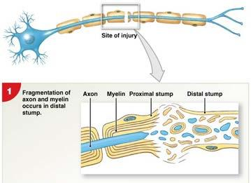 Injury Repair & Regeneration of Nervous Tissue In PNS: If the cell body of the neuron
