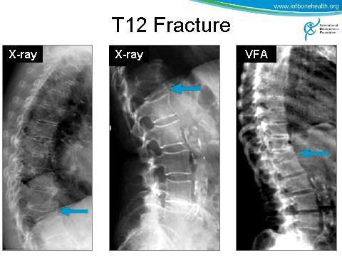 Image quality and resolution are superior with the radiograph, particularly at the upper thoracic regions (above T6 or T7) where the VFA image can suffer from interference by ribs, scapula and soft