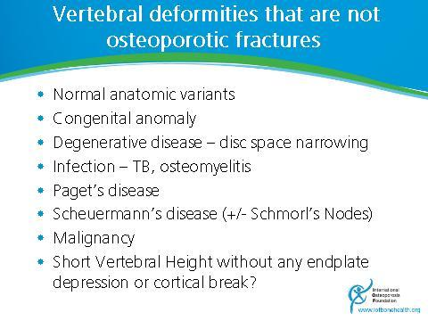 Slide 47 It is important to remember that not all vertebral deformities represent vertebral compression fractures. Paget s disease often causes bony enlargement.