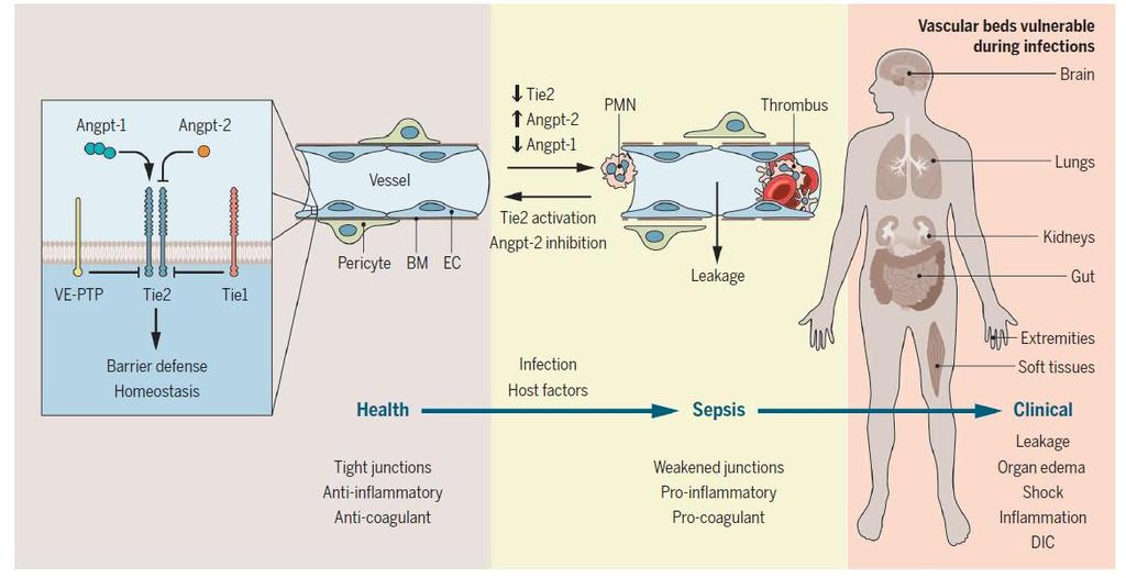 The Pathophysiology of Sepsis Parikh SM (2016) Targeting Tie2 and the host vascular response in sepsis. Science Translational Medicine.