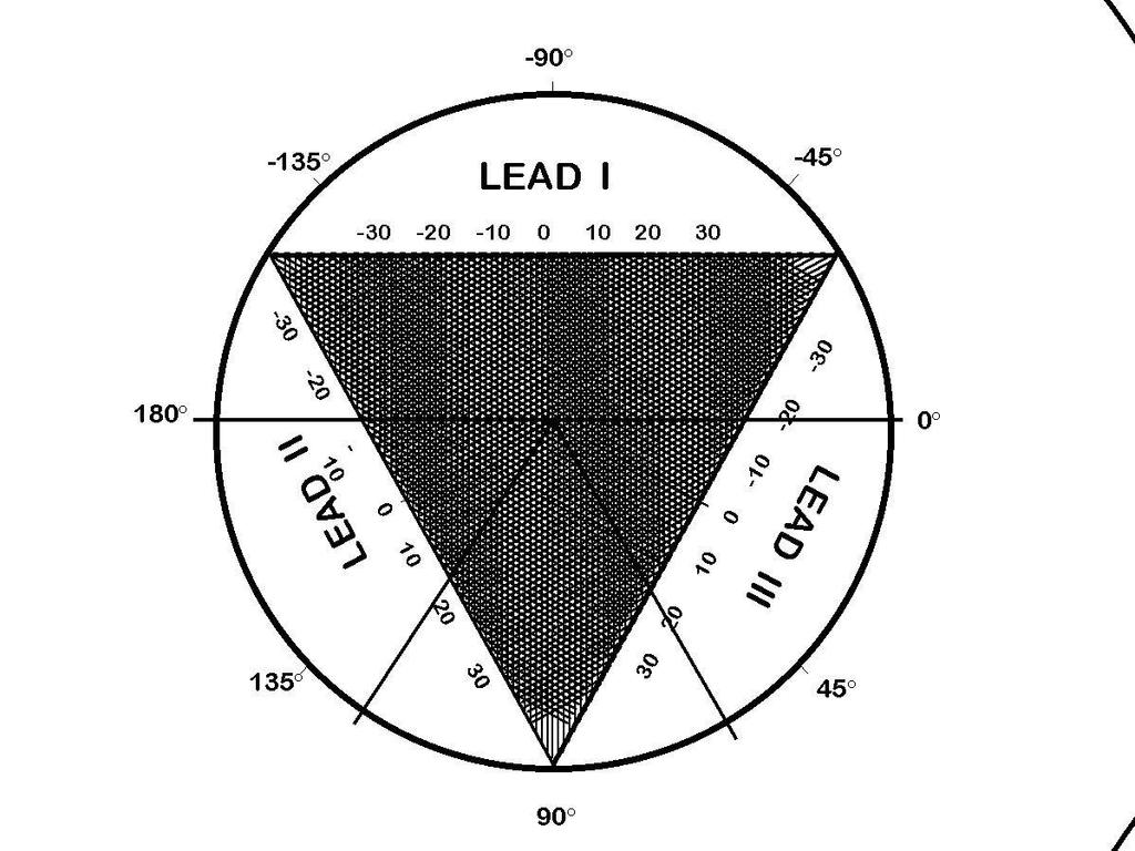 Plot the potentials obtained from Leads I and III on the graph in Figure 4. Calculate the mean electrical axis.