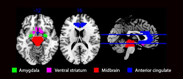 8 Current Pharmaceutical Design, 2016, Vol. 22, No. 00 Weinstein et al. Fig. (4). Regions that showed activation in response cannabis cues and reward in regular cannabis users- Amygdala (Filbey et al.