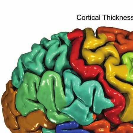 Cortical