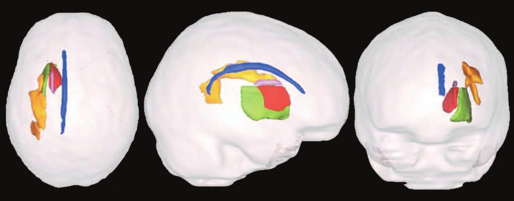 White Matter Tracts & Working Memory Superior longitudinal fasciculus