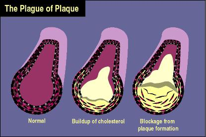 Cholesterol Cholesterol a fatlike substance that is produced in the liver and circulates in the blood.