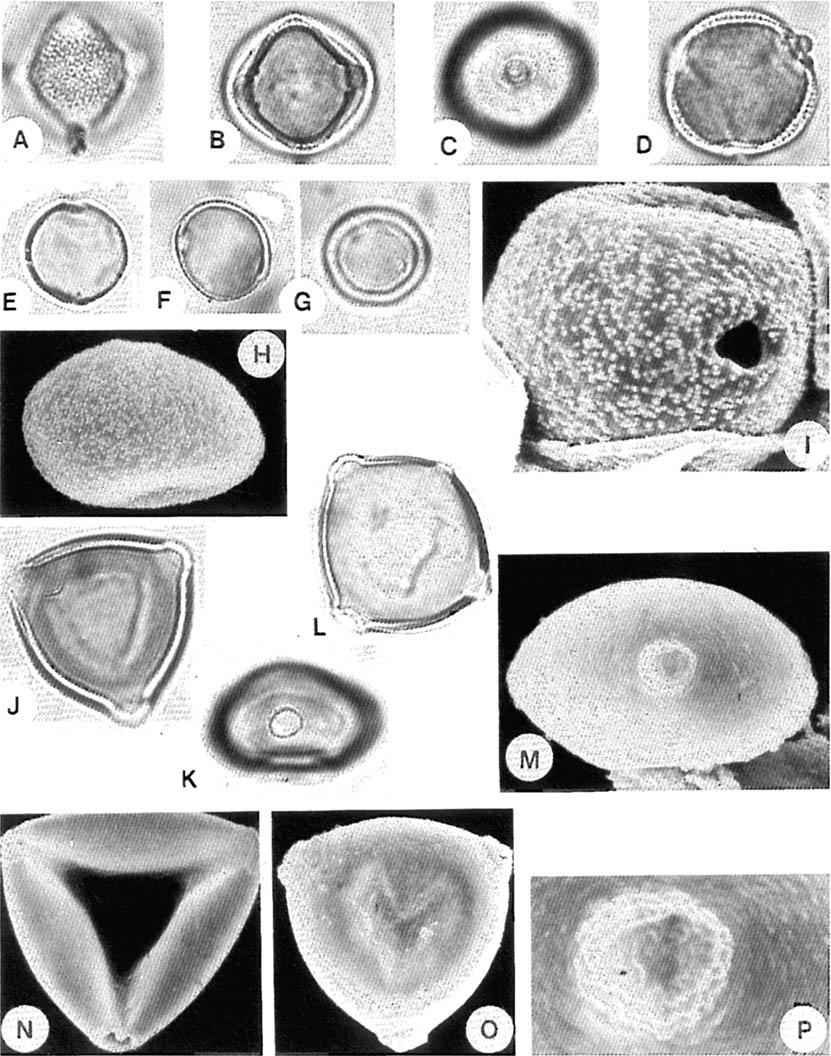Fig. I I. hlimosaceae. A-D. Fipradeniasrriiiiz africaiziiin. (C) distinct annulus (D) note operculum of 0s. hlonceae. E-I. Morris ii~esozjgin. (H) two pores, x 1000.