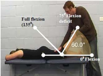 Primary Criterion #2 - Hip Extension deficit of 40. The figure shows normal anatomical range of 20 hip extension (6).