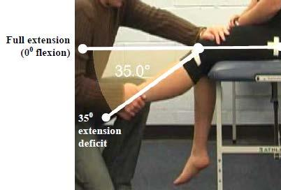 Primary Criterion #3 - Knee Flexion deficit of 75.