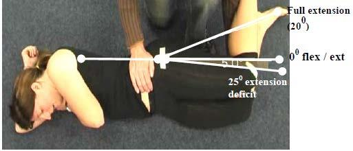 Secondary Criterion #2 Hip extension deficit of 25 but <40.
