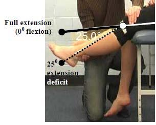 Secondary Criterion #3 Knee flexion deficit of 55 but <75.