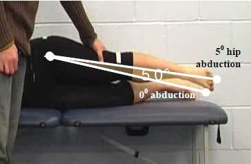 Primary Criterion #3 Hip Abduction loss of 3 muscle grade points (muscle grade of two).