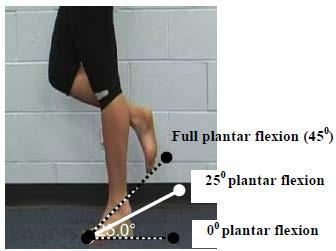 Primary Criterion #5 Knee extension loss of 3 muscle grade points (muscle grade of two). The figure shows manual resistance being applied at full knee extension (0 flexion).