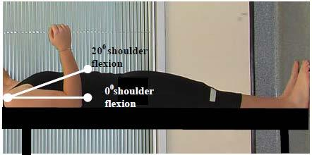Criterion #1 Shoulder flexion loss of 3 muscle grade points (muscle grade of two).