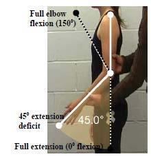 Criterion #4 Elbow extension deficit of 45 or ankylosis in any position*. The dashed lines in the figure are full elbow flexion (150 ) and full extension (0 ).
