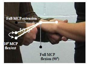 Criterion #6 any four digits with 10 of flexion / extension at the metacarpo-phalangeal joint.