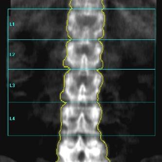 Agreement of Individual Vertebrae Normal Progression and T-Score Variation