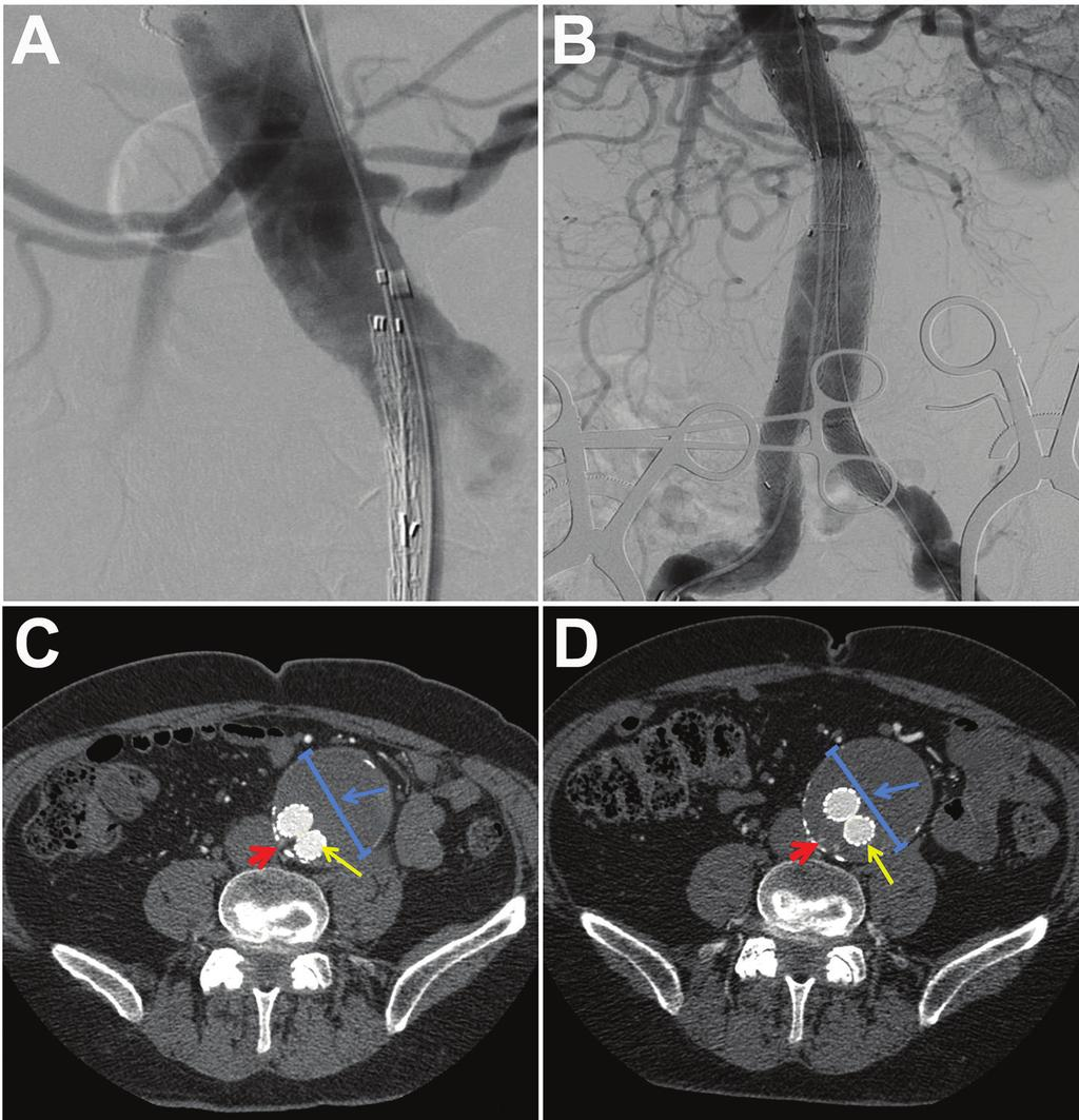 Figure 2. Composite aortograms and computed tomography angiographic (CTA) views of the abdominal aorta of a 79-yearold man with several vascular disease risk factors.