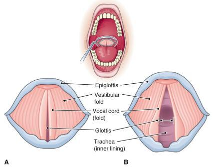 Figure 18-4 The vocal cords, superior view.