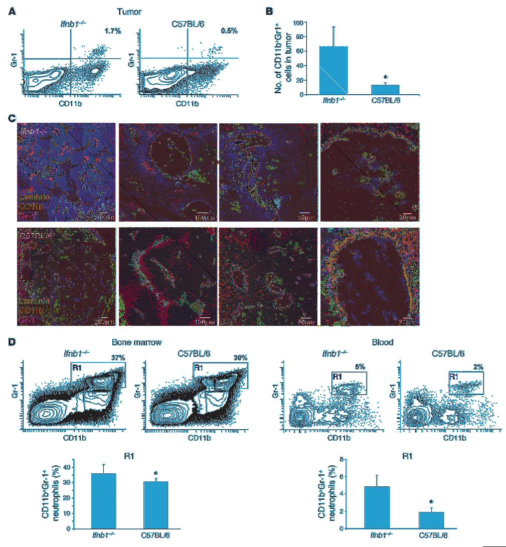 research article Figure 3 Enhanced numbers of CD11b+Gr-1+ neutrophils in tumors of Ifnb1 / mice.