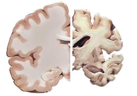 What is Alzheimer s disease?