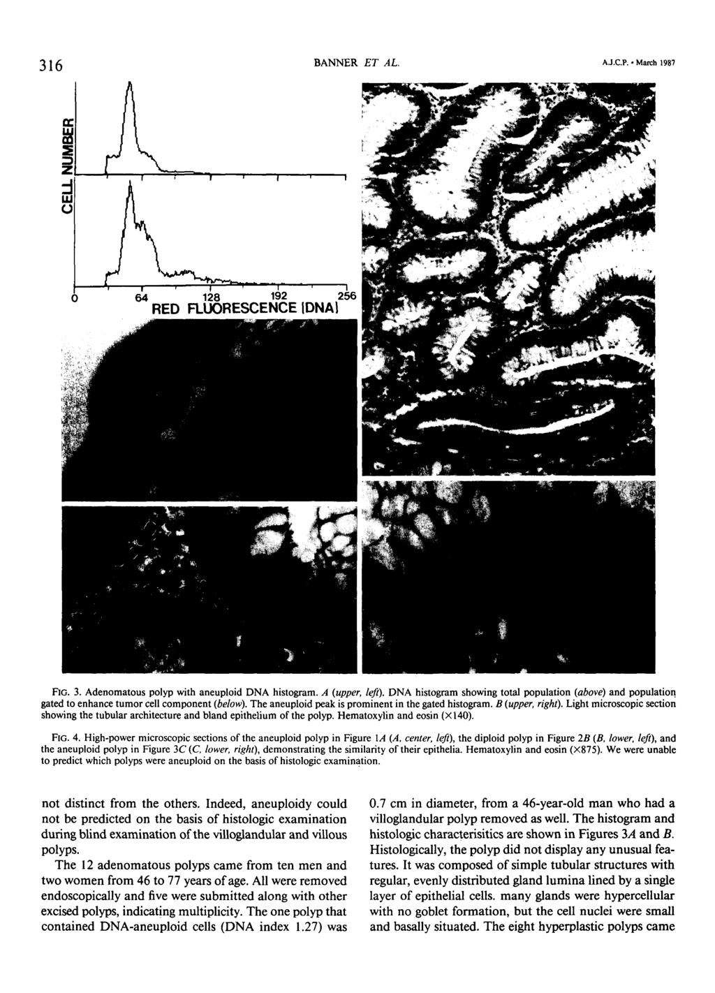 316 BANNER ET AL. AJ.C.P. March 1987 FIG. 3. Adenomatous polyp with aneuploid DNA histogram. A (upper, left).