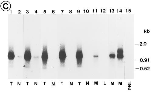 Analysis of CD44-mRNA in colorectal polyp by RT-PCR and the same filters were hybridized consecutively with (C) primer P5, (B) Southern blot hybridization.