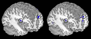 Cocaine & Sex Functional MRI showing activation of the same brain sites in cocaine addicts watching a cocainecraving-inducing film (left) and non-drugusing subjects watching a film
