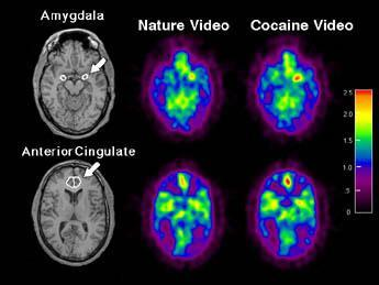 Limbic Activation on Cue PET scan shows that limbic regions in the brains of intreatment cocaine users are activated by watching cocaine-related videos.
