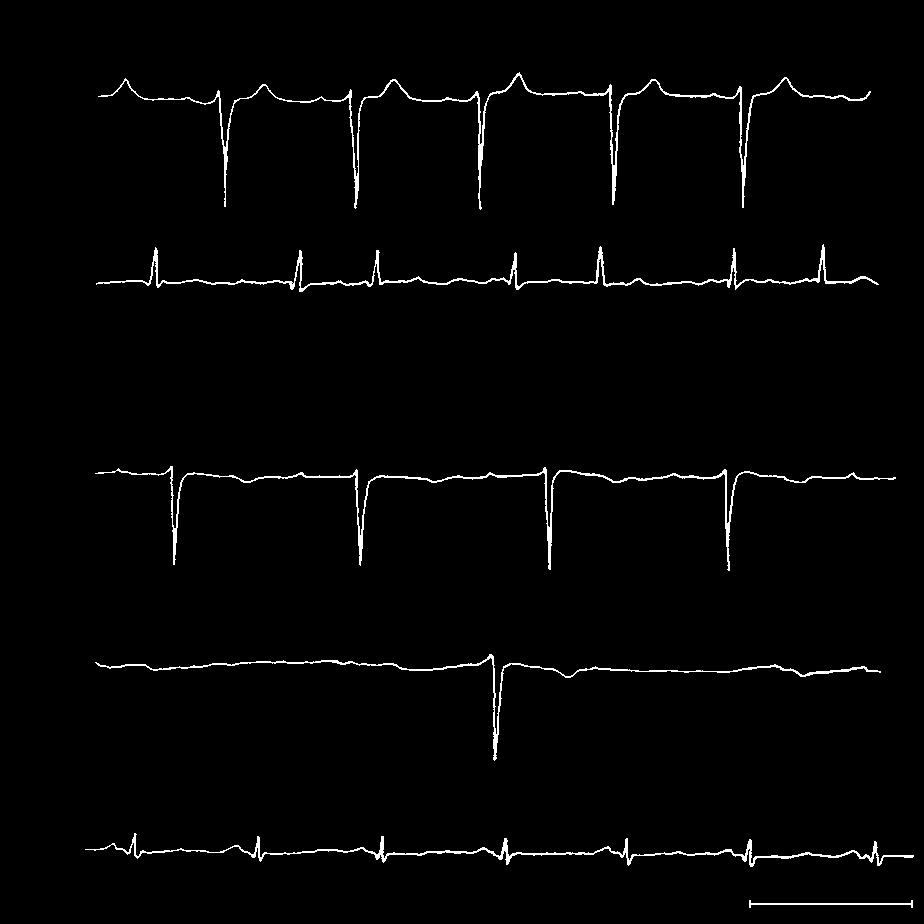 LAMIN MUTATIONS AND DILATED CARDIOMYOPATHY A yr yr 7 yr 7 yr B 9 yr P wave sec Figure. Electrocardiographic Tracings of Affected Members of Family B.