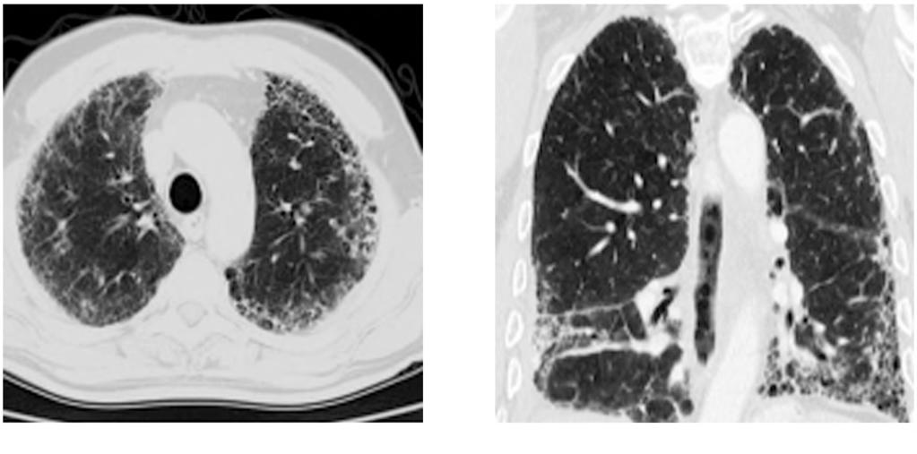 910 Imaging Findings of Interstitial Lung Disease (A) Fig.