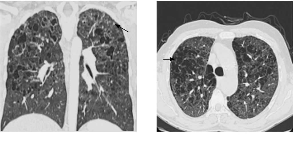Some nodules are miliary-like. (B) (A) Fig. (5): A 29-year-old male patient complains of dry prolonged cough with cystic lung changes in LCH.