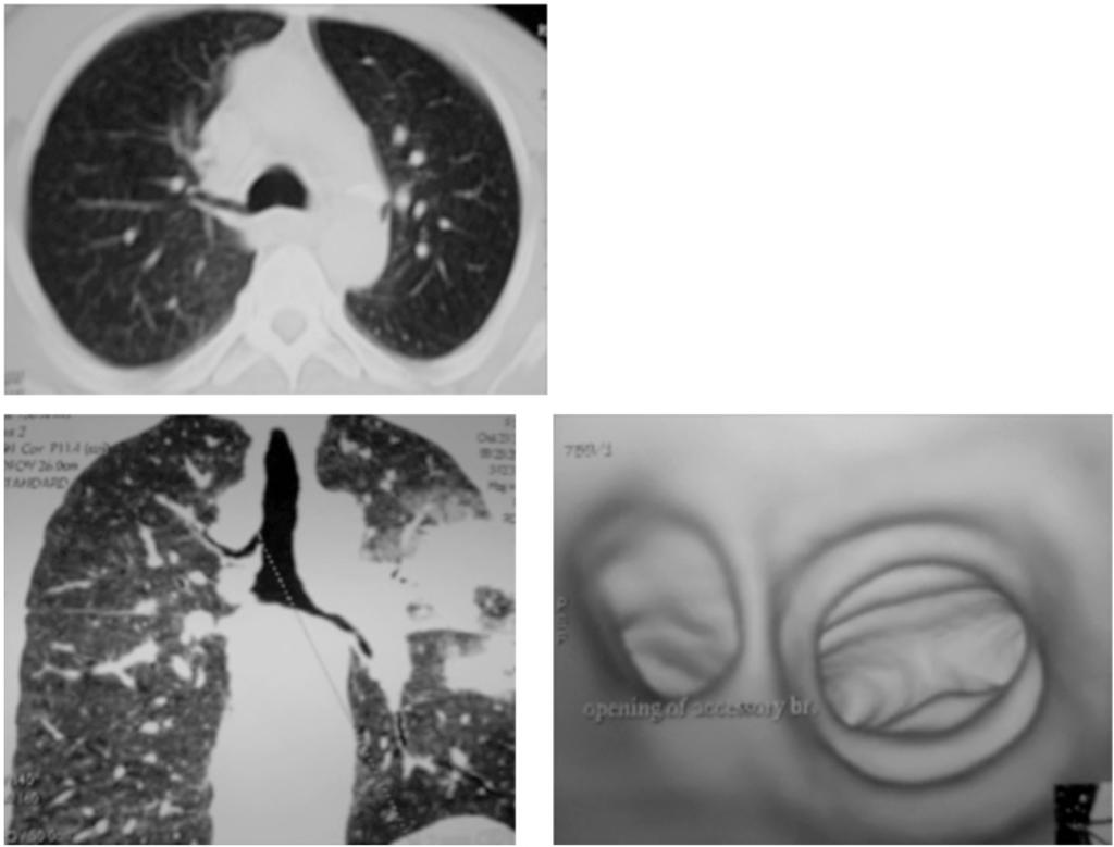 952 The Role of Multislice CT in Imaging of Different Tracheal Lesions Case (1): Axial CT chest (lung