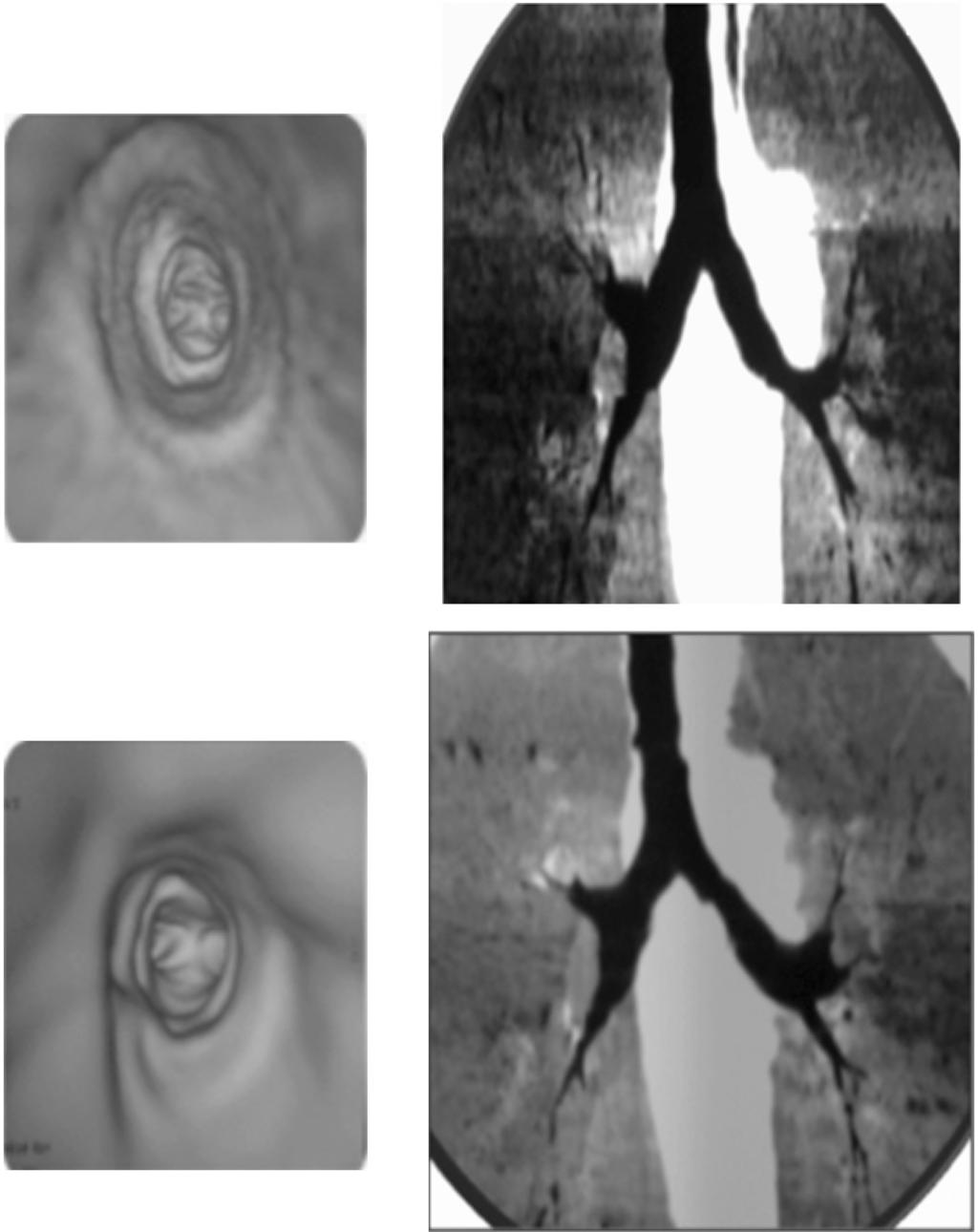 Youssriah Y. Sabri, et al. 955 Inspiratory Expiratory Case (10): Male patient 10 years old with suspected tracheomalacia referred for follow virtual bronchoscopy.