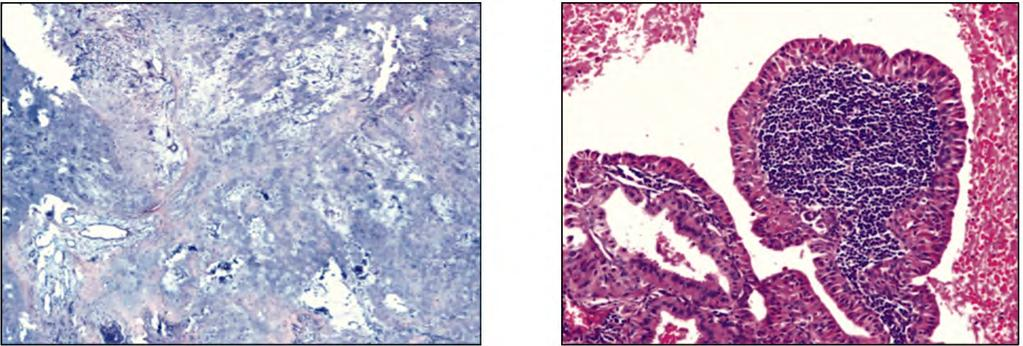 970 Salivary Gland Neoplasms a Histopathological & Statistical Study Fig.