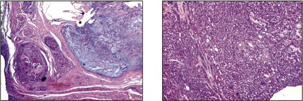 Gina A. Nakhla, et al. 971 Fig. (7): Adenocarcinoma (Left) on top of pleomorphic adenoma (Right) (H & E x100). Fig. (8): Basal cell adenoma showing basaloid cells in a solid and glandular pattern (H & E x100).