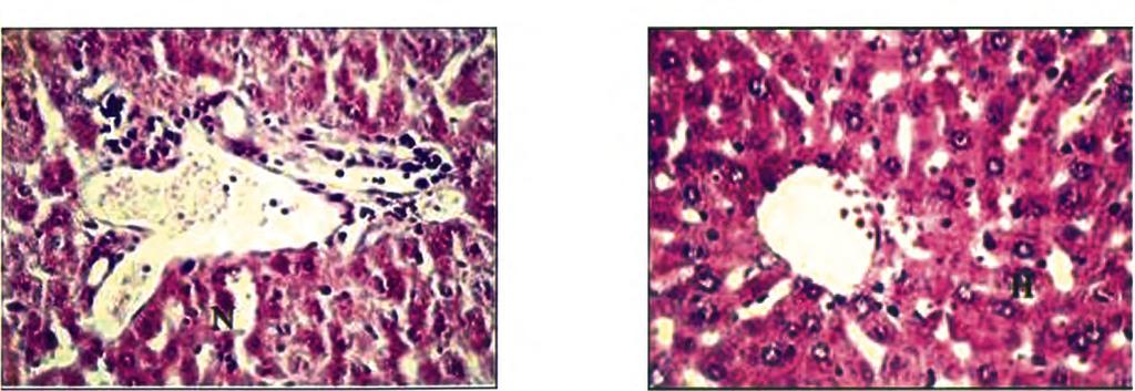1 C). Liver sections from the diabetic group IV treated with morin showed gradual recovery of hepatocytes with less cytoplasmic vacuolization and degenerated nuclei (Fig. 1D).