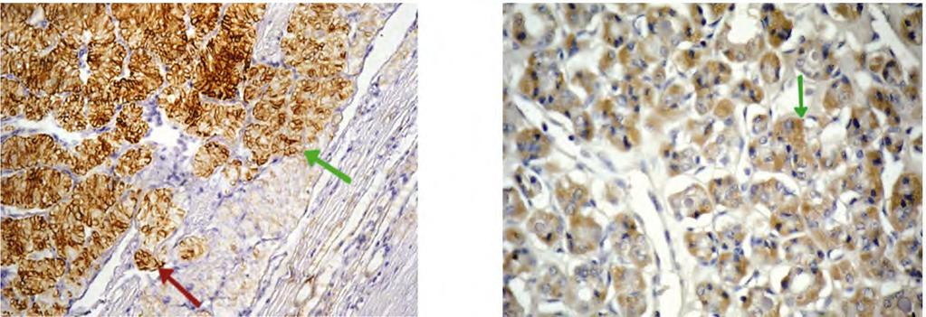Fig. (5): Papillary thyroid carcinoma/follicular variant showing diffuse positive Cytoplasmic staining with membranous accentuation