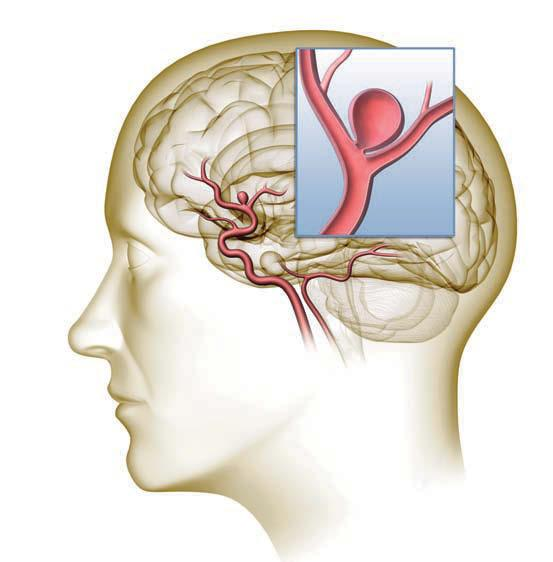 As the aneurysm grows, it may cause neurologic symptoms such as headaches, vision loss, etc.