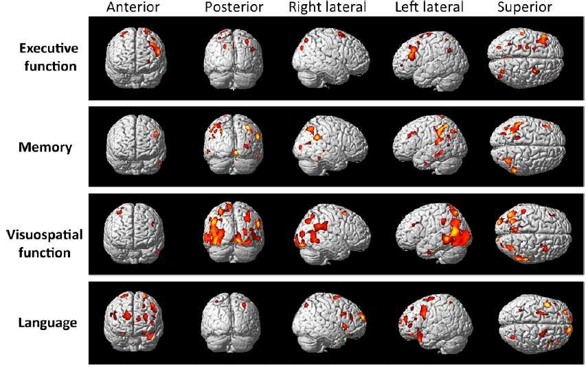 The role of functional and molecular neuroimaging Functional Neuroimaging with 18-FDG in PD-MCI and PDD Covariance analysis showed that executive/language syndromes were related to hypometabolism in