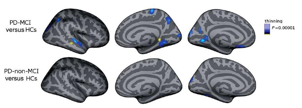 The role of functional and molecular neuroimaging A window on other neuroimaging technologies Mild cognitive impairment is linked with faster rate of cortical thinning in patients with PD