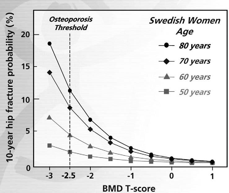 Scientific Article Figure 2. Age and Bone Mineral Density are Major Independent Determinants of Fracture Risk. At the same BMD (T-score -2.