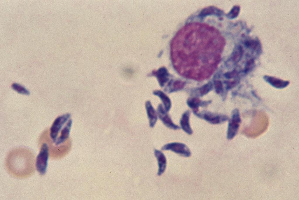 Toxoplasma gondii In ascitic fluid of a mouse.