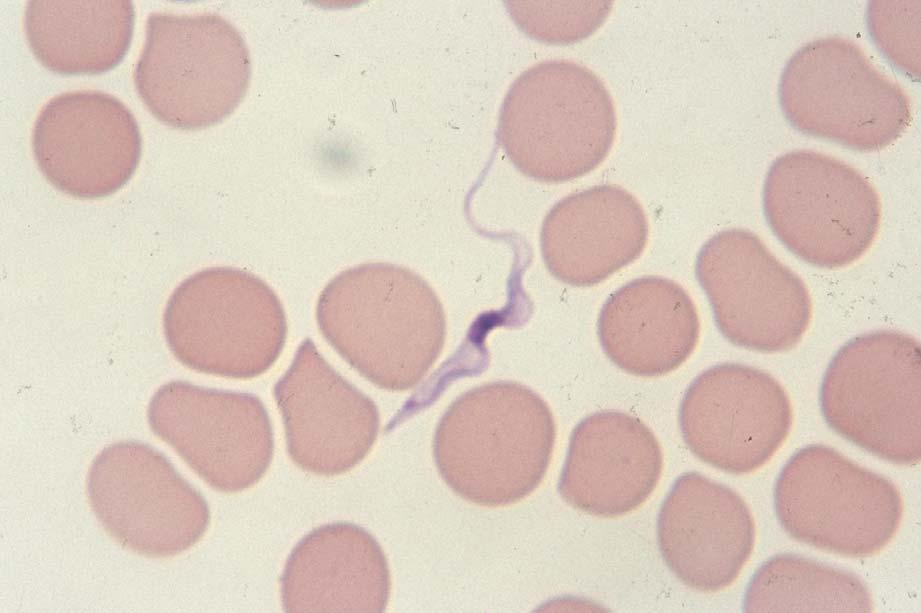 Trypanosoma brucei gambiense Slender form, 30 μm long, with kinetoplast, central nucleus, undulating membrane and long free